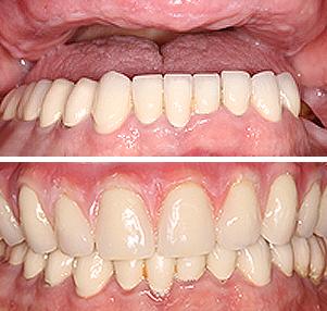 dentures restoration