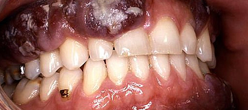 Byproducts of periodontal bacteria may induce oral cancer growth