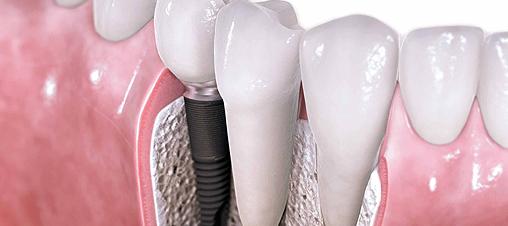 Implantes dentales, mitos y mentiras