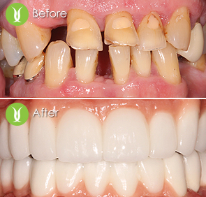 Restorations-with-Dental-Implants-and-Full-Zirconia-Bridges