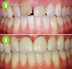 Restorations with Dental Implants