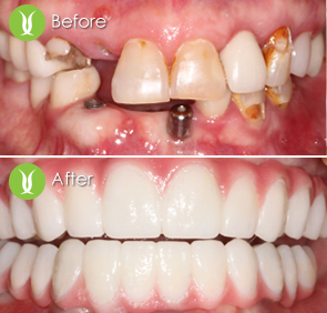 full-moth-zirconia-implant-20