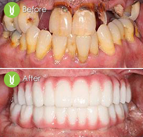 full-moth-zirconia-implant-21